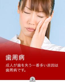 歯周病 成人が歯を失う一番多い原因は歯周病です。