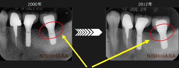 抜歯後早期埋入したインプラントの12年後